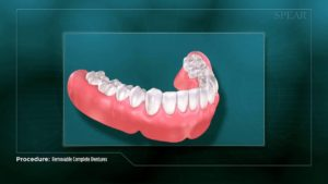 Removable Complete Dentures