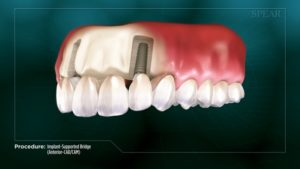 Implant-Supported Bridge (Anterior- CAD/CAM)