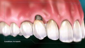 Peri-Implantitis