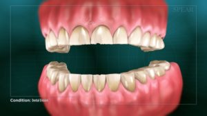 Dental Erosion