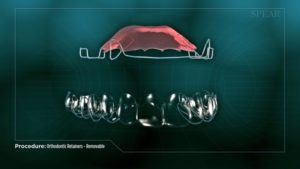 Orthodontic Retainers- Removable