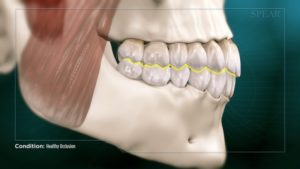 Healthy Occlusion