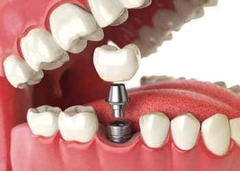 Bone-Grafting-for-Dental-Implants-san-diego