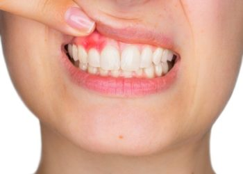 gum-disease-whitby-brooklin-dentist-brooklin-village-dental-care