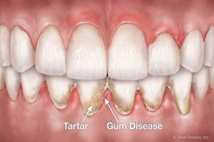 periodontal-gum-disease
